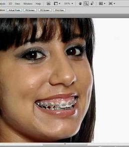 آموزش برداشتن سیم از روی دندان